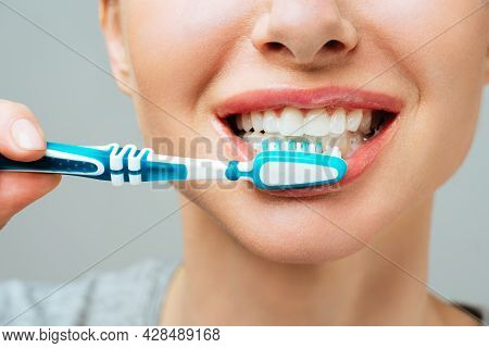 Woman With Healthy White Teeth Holds A Toothbrush And Smiles. Oral, Hygiene Concept