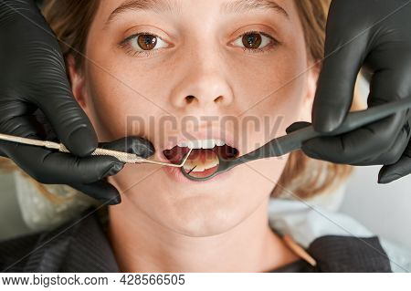 Close Up Of Stomatologist Hands Checking Female Patient Teeth. Young Woman With Open Mouth Looking A