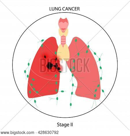 Lung Cancer Stage. Respiratory System Damage, Tumor, Swelling, Inflammation In Internal Organs And L