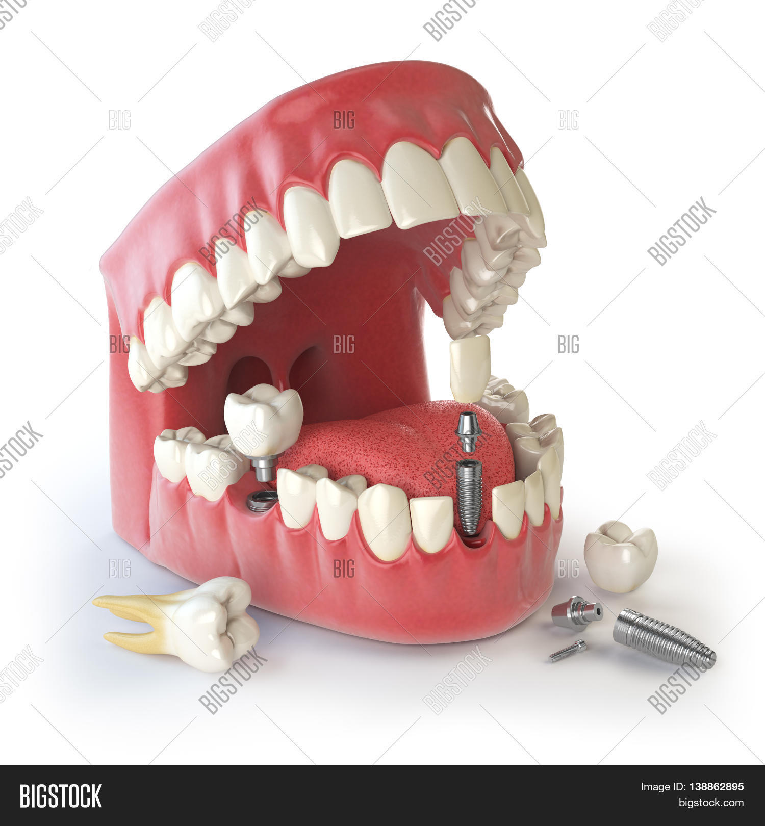 Tooth Human Implant Image Photo Free Trial Bigstock