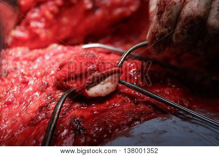 Excised navel holden by surgical tools during the stomach surgery close-up