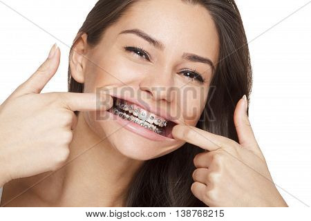 Face of a young woman with braces on her teeth