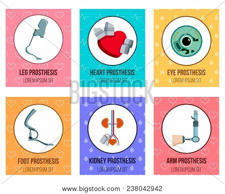Orthopedic Medical Prothesis Flat Cards Collection With Artificial Kidney Eye Implants And Prostheti