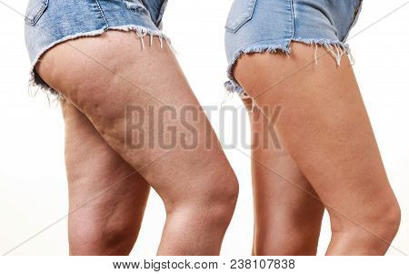 Comparison Of Female Legs Thighs With And Without Cellulite. Skin Problem, Body Care, Overweight And