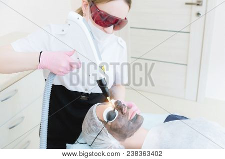 The cosmetician girl in goggles makes the procedure of carbon peeling with the help of a cosmetology laser. Carbon face peeling procedure. Laser pulses clean skin of the face. Hardware cosmetology treatment. Process of photothermolysis, warming the skin,  poster