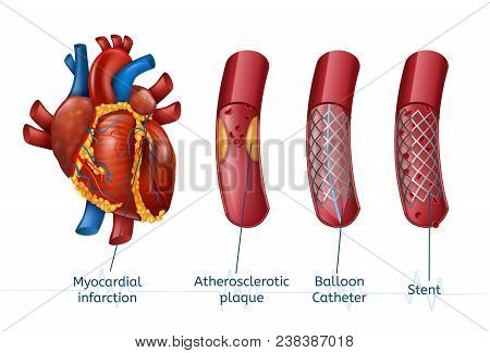 Myocardial Infarction. 3d Realostic Stent In Illustration Of Human Heart With Blocked Coronary Arter