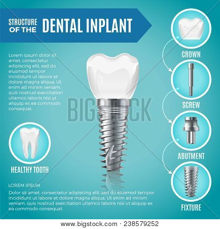 Teeth Maquette. Structural Elements Of Dental Implant. Infographic For Medicine Poster. Vector Denta