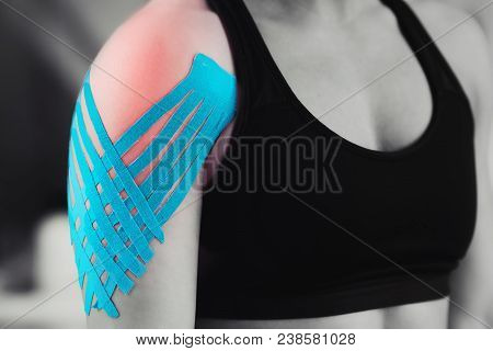 Black And White Image Of Kinesiology Taping Treatment With Blue Tape On Female Patient Injured Shoul