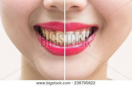 Perfect Smile Teeth Before And After Bleaching. Whitening Teeth Concept