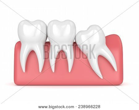 3d Render Of Teeth With Wisdom Mesial Impaction Over White Background. Concept Of Different Types Of