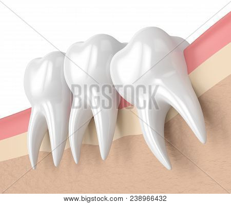 3d Render Of Teeth With Wisdom Mesial Impaction. Concept Of Different Types Of Wisdom Teeth Impactio