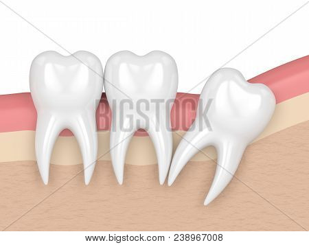 3d Render Of Teeth With Wisdom Distal Impaction. Concept Of Different Types Of Wisdom Teeth Impactio