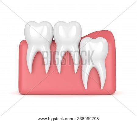3d Render Of Teeth With Wisdom Vertical Impaction Over White Background. Concept Of Different Types