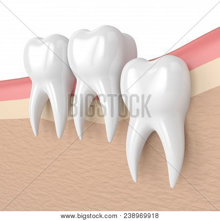 3d Render Of Teeth With Wisdom Vertical Impaction. Concept Of Different Types Of Wisdom Teeth Impact