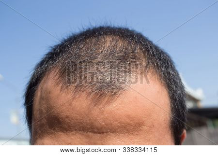 Middle-aged Man Concerned With Hair Loss. Baldness. Hair Loss Concept.
