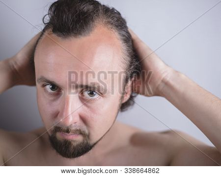 Portrait Of A Young Guy With Magnificent Hair That Falls Early On His Forehead. The Problem Of Prema