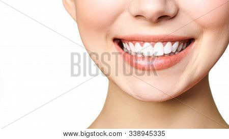 Stomatology Concept. Partial Portrait Of A Girl With White Teeth Smiling. Closeup Of Young Woman At
