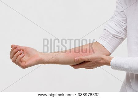 Close Up Of Man Scratching The Itch On Her Hand, Isolated On White Background. Dry Skin, Animal/food