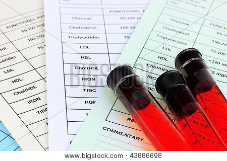 Blood in test tubes and results close up poster