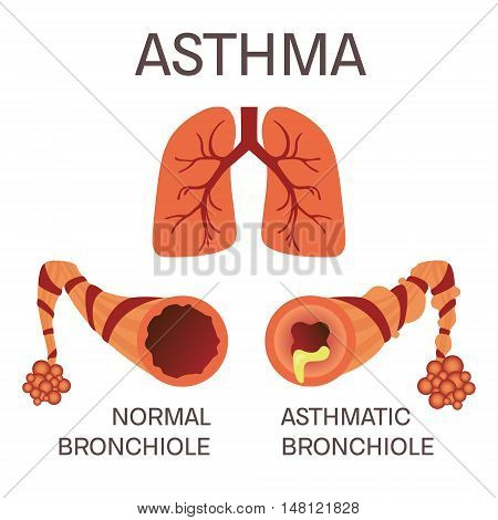 Normal and asthmatic bronchioles on white background. Asthma medical concept. Lungs symbol. Human body organs anatomy icon. Isolated vector illustration.