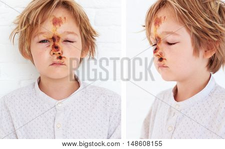 Soft Tissue Contusion, Extensive Edema Of Young Boy Face, As A Result Of A Fall From A Bicycle