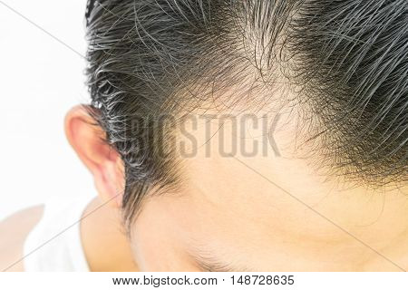 Young man serious hair loss problem for hair loss concept