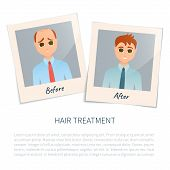 Vector illustration of two photographs of a man before and after hair treatment and hair transplantation. Male hair loss design template. Alopecia medical concept. Vector illustration. poster