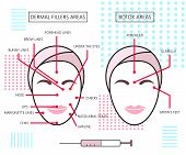 Infograthic poster about dermal fillers and botox ares. Injections. Cosmetology. Beauty. Vector Illustration. poster