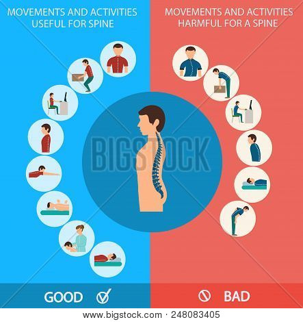 Spine Infographic. Movements And Activities For Spine, Good And Bad. Correct And Incorrect Position