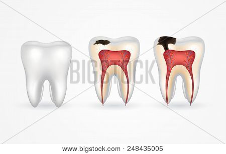 Tooth Caries And Healthy Tooth. Superficial Caries; Deep Caries; Enamel And Dentin Decay; Periodonti