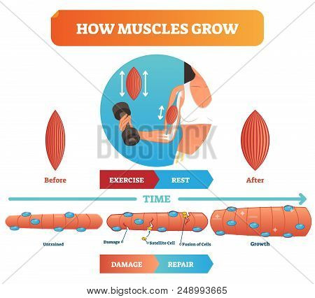 Vector Illustration About How Muscles Grow. Medical And Anatomical Educational Diagram With Before E