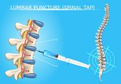 Lumbar Puncture or Spinal Tap Procedure Medical Vector Poster with Human Vertebral Column and Syringe Needle Inserted Into Spinal Canal to Collect Cerebrospinal Fluid Anatomical Realistic Illustration poster
