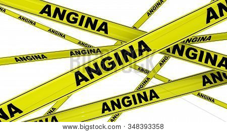 Angina. Yellow Warning Tapes With Black Words Angina. Isolated. 3d Illustration