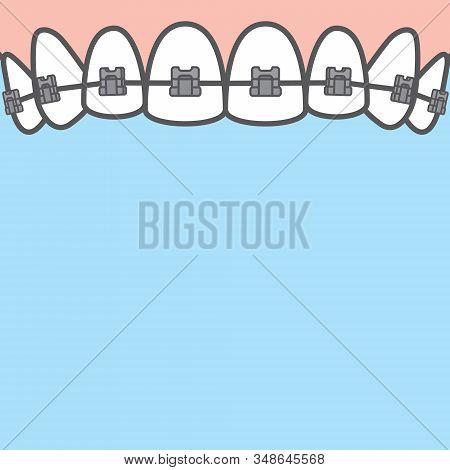 Blank banner Upper metal braces (upper) teeth illustration vector on blue background. Dental concept.