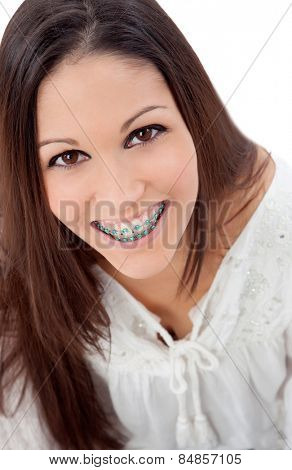 Smiling teenager girl with brackets isolated on a white background