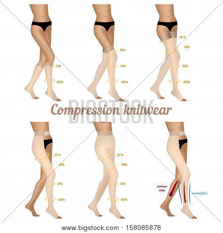 Compression knitwear for varicose veins in the legs. Stockings to improve blood flow in the varicose veins. Vector illustration.