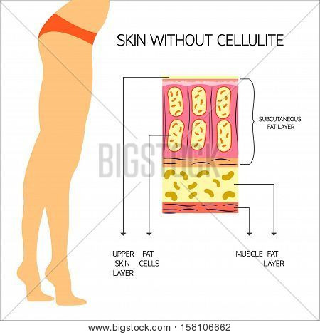 Cellulitis Vector illustration The structure of the adipose tissue with normal body weight and no cellulite Infographics