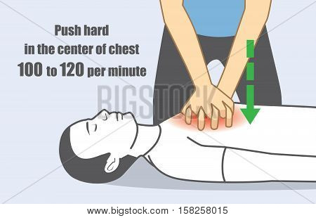 Hand push hard and fast in the center of chest 100 to 120 per minute. Illustration about perform CPR for person has stopped breathing.
