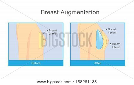 Woman body before and after breast augmentation. Illustration about cosmetic surgery.