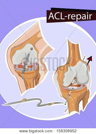 Vector illustration of Graphic ACL Knee repair