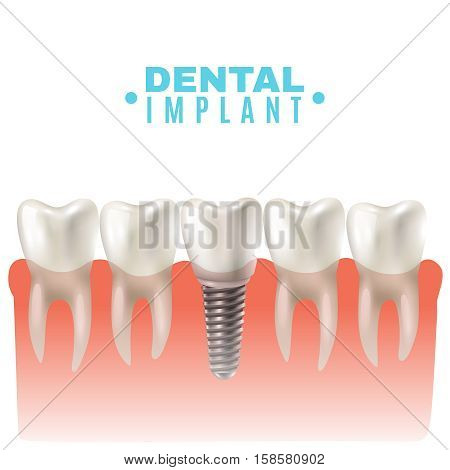 Dental implant model closeup cut away side view educative medical poster vector illustration