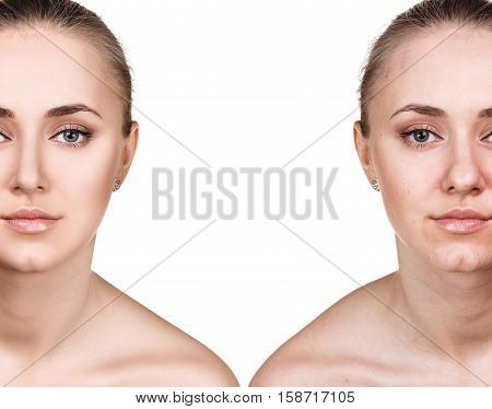 Comparison portrait of young woman before and after retouch