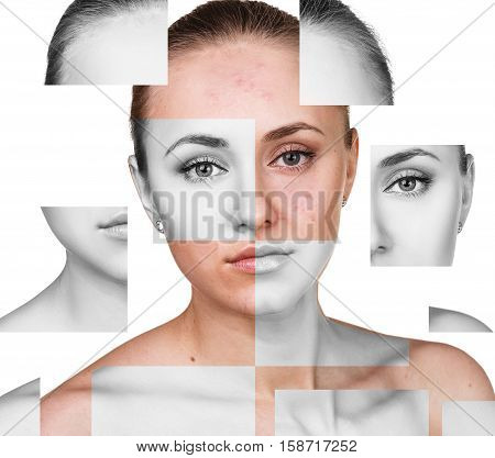 Collage parts of young woman before and after retouch isolated on white