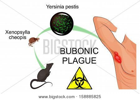 illustration of the bubonic plague pathogen contagious