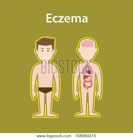 eczema sick illustration with human body full stand and organ with protection sign and text poster vector