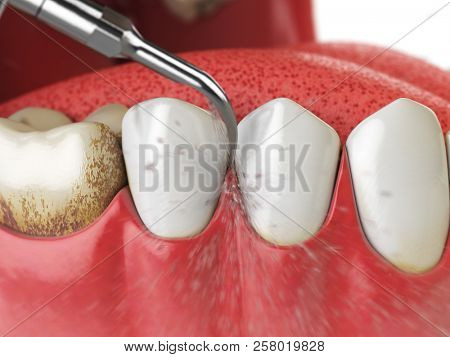Professional teeth cleaning. Ultrasonic teeth cleaning machine delete dental calculus from human teeth. 3d illustration poster