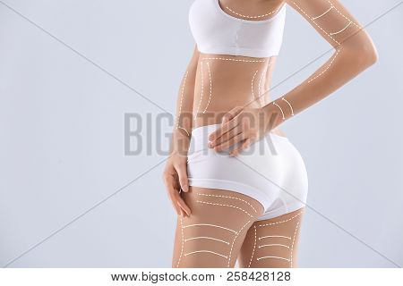 Young Woman With Marks For Liposuction Operation And Space For Text On Light Background. Cosmetic Su