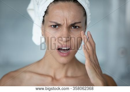Woman Touches Face Feels Stressed About First Mimic Wrinkles