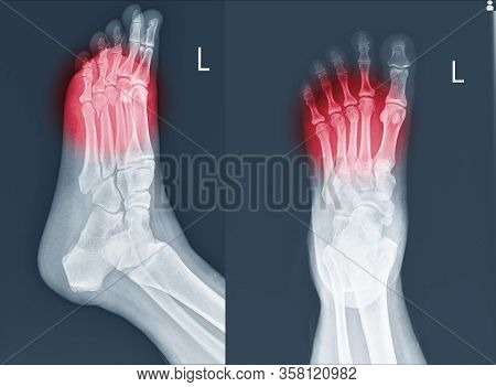 X-ray Foot And Ankle (ap,lat)showing Metatarsal Fractures On Red Point.metatarsal Fractures Are Amon