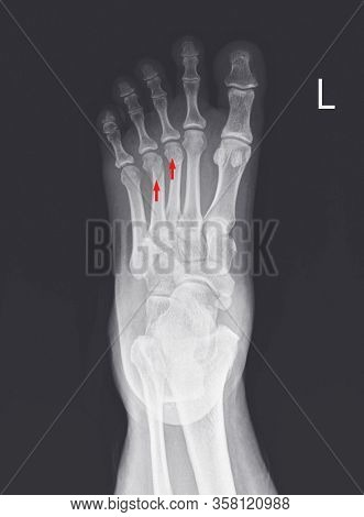 X-ray Foot And Ankle Showing Metatarsal Fractures On Red Arrow Point.metatarsal Fractures Are Among
